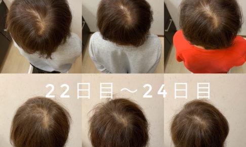 女性の育毛結果の紹介
